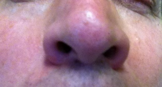 Adult_male_nostril